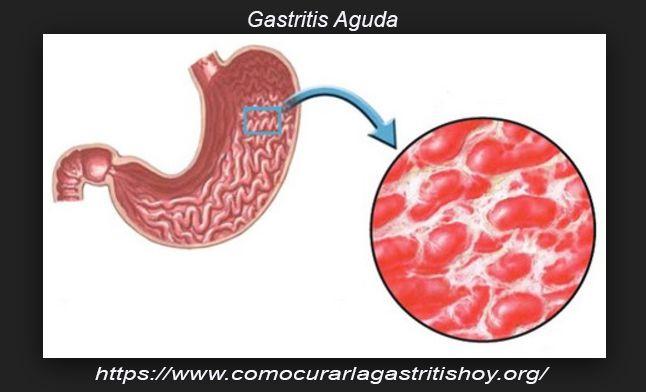 Como curar la Gastritis Aguda