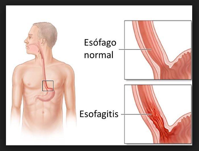 Tratamiento eficaz para la Esofagitis